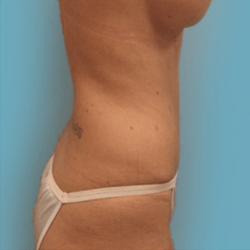 Manhattan abdominoplasty after 2